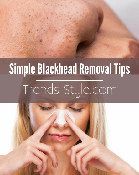 blackhead removal tips - photo #1